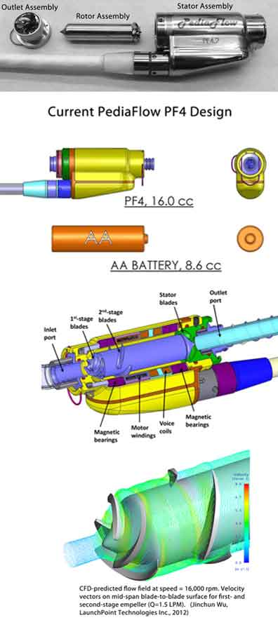 PediaFlow PF4 Design